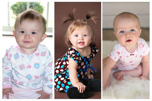 Hair at 6 months